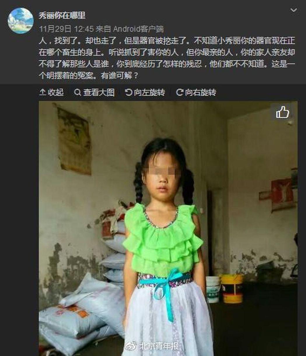 司機撞傷女童怕擔責任將其殺害,孩子器官疑被挖走。取材自微博