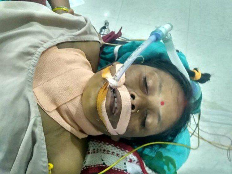 印度一位35歲的女子因失足墜樓而導致一根1.5公尺的鋼筋穿頸,但因穿入的鋼筋避開...