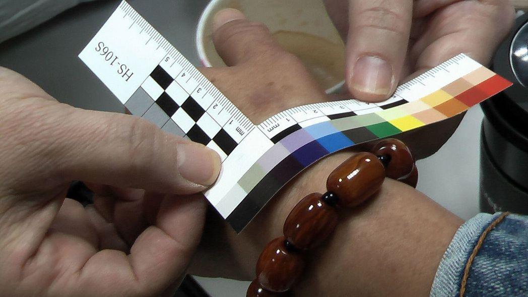 尹莘玲設計一款L型的「驗傷尺」,上面有色譜可以比對淤傷形成的天數。記者徐如宜/攝...