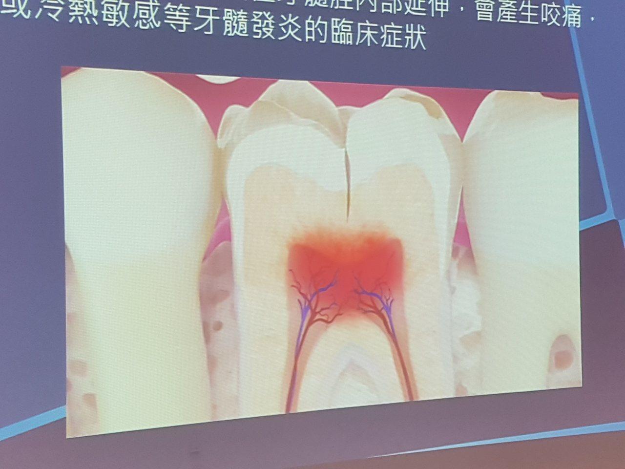 牙齒酸軟刷抗敏牙膏?小心越刷越嚴重