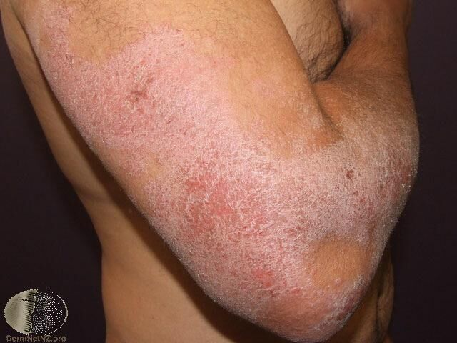 異位性皮膚炎的慢性濕疹變化 Photo Credit:DermaNet New ...