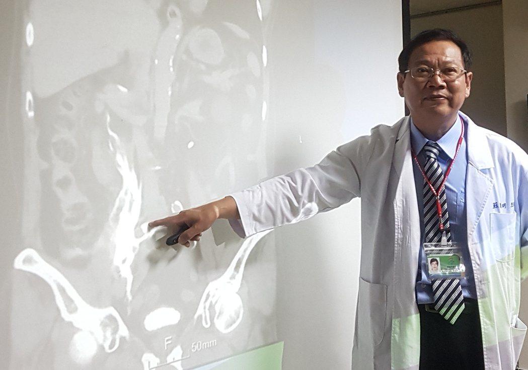 泌尿科主治醫師蘇進明表示,因結石塞住輸尿管引發破裂的情況相當罕見,從電腦斷層顯影...