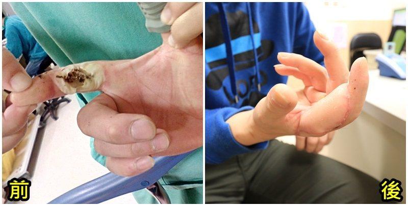 李姓市民右手指手術前(左)後的比較。圖/亞洲大學附屬醫院提供