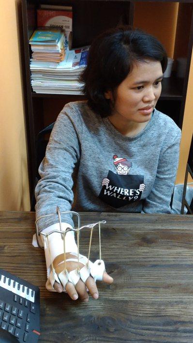女外勞Sura經肌腱轉移術治療,右手腕和手指才恢復伸展。圖/長安醫院提供