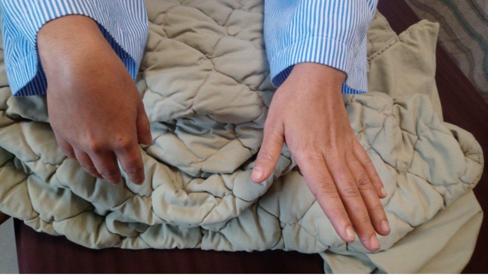 女外傭Sura右上臂的肱骨骨折,手術治療打上鋼板和鋼釘固定後,卻發現右手腕和手指...