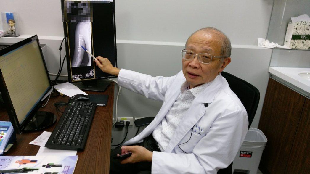 長安醫院副院長林茂仁說,橈神經嚴重受損時需透過肌腱轉移術治療。圖/長安醫院提供