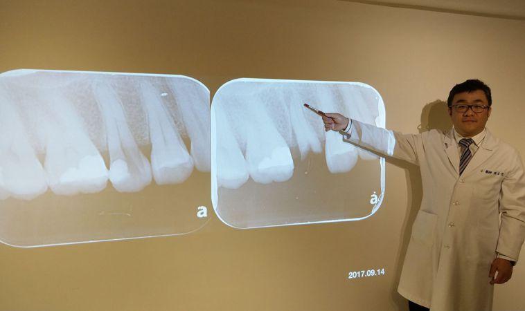 牙醫張文信說明,鄭姓女病患透過蓄意再植術,將斷牙(左圖中)拔出來,轉180度後再...