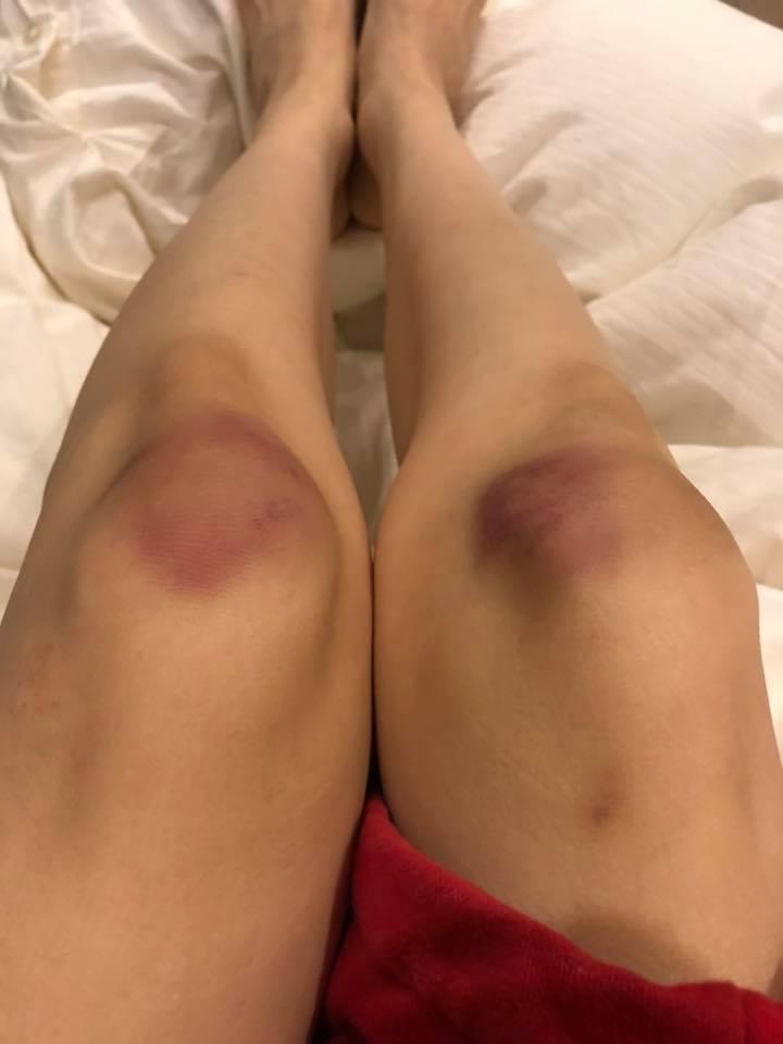 范范在家中摔倒,膝蓋都淤青。 圖/擷自范瑋琪臉書