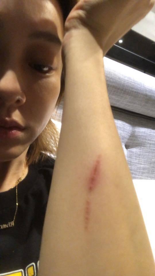 范范在家中摔倒,手臂有擦傷。 圖/擷自范瑋琪臉書