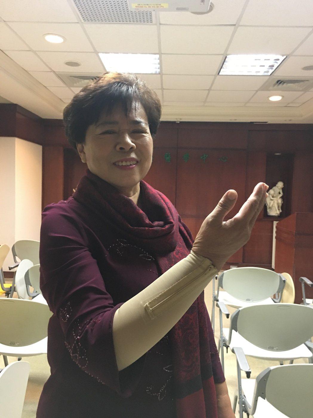 62歲蘇張女士乳癌手術後30多年來飽受淋巴水腫,如今擺脫「大象手」 之苦,露出開...