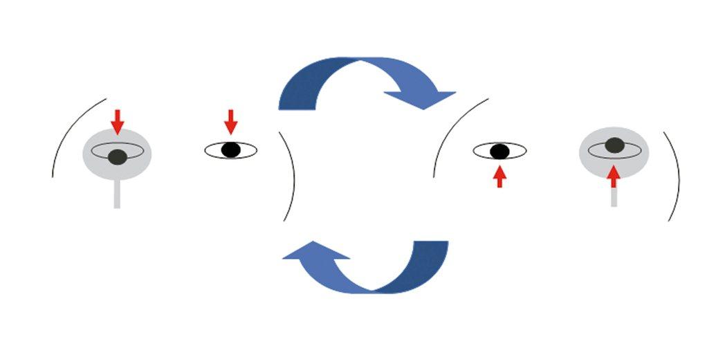 請患者注視前方目標物,輪流遮蓋患者的右眼和左眼,若發現患者眼睛有垂直移動的現象(...