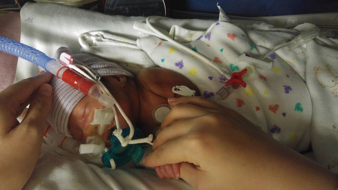 研究發現,有三成早產兒可能出現中重度神經動作異常,急需掌握黃金治療期。圖/國泰醫...