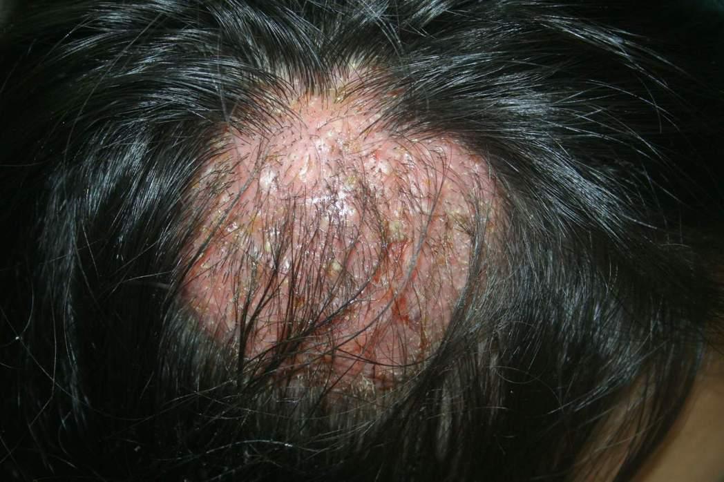 家有寵物要注意,有可能感染頭癬造成癩痢頭。圖/北市衛生局提供