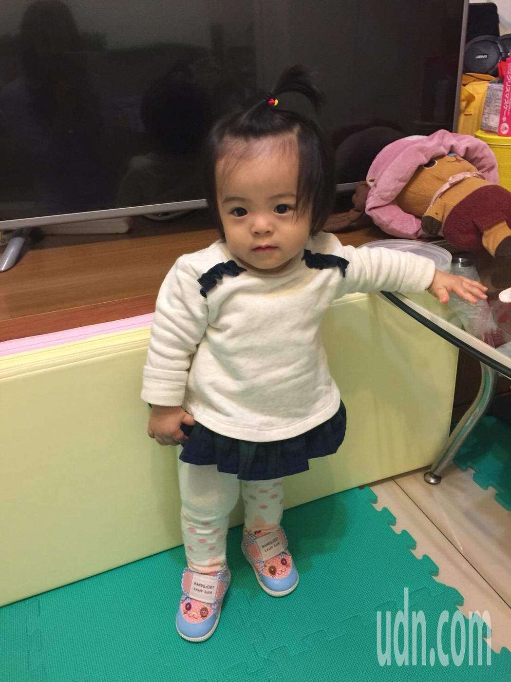早產兒娜娜克服併發症,現已一歲大。圖/國泰醫院提供