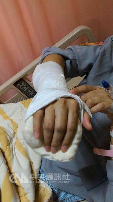 女警手指遭折斷送醫。圖/中央社