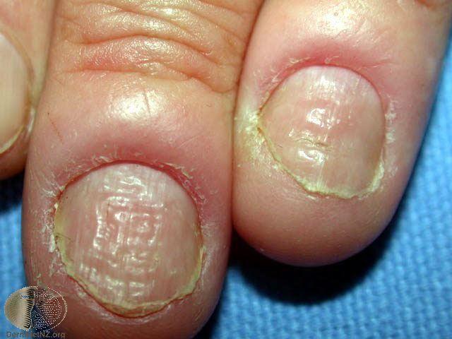 慢性甲溝炎 chronic paronychia:甲褶發紅與腫脹、甲褶與指甲交界...