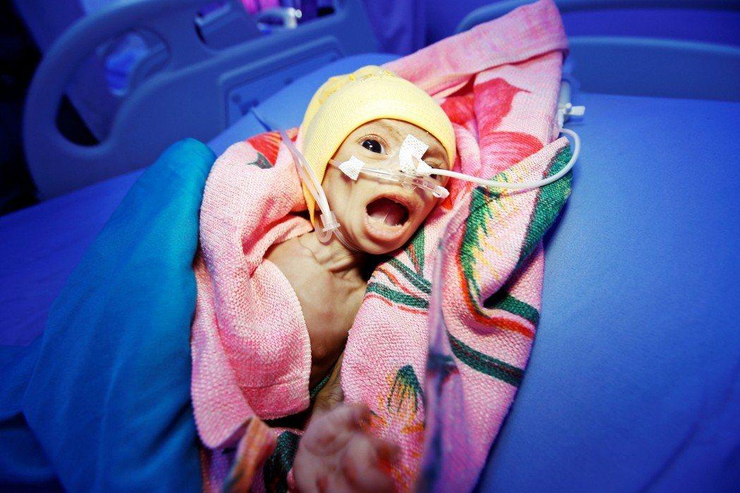 娜迪亞:這是娜迪亞(Nadia Ahmad Sabri),她才出生6天、嚴重營養...