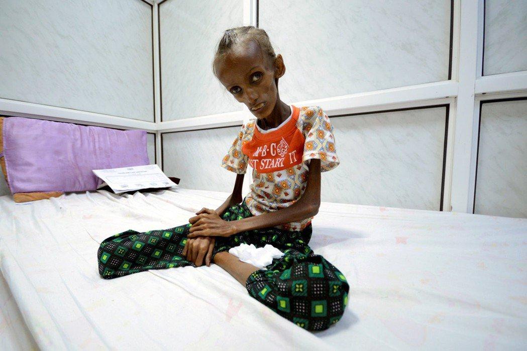 薩伊達:坐在病床上骨瘦如柴的,其實是18歲的葉門少女薩伊達(Saida Aham...