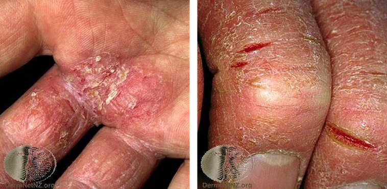 左:富貴手的濕疹變化,可看到紅腫、發炎、脫屑反應。右:富貴手發生脫屑反應,並且因...