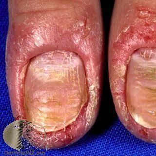 富貴手發生紅腫、發炎、脫屑反應,並且侵犯到指甲,引起甲溝炎 Photo Cred...