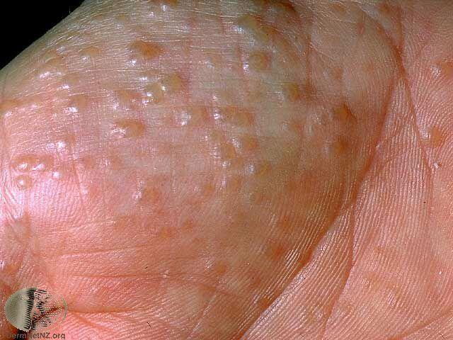 汗皰疹是另一種常見的手部濕疹,特色是一開始會在特定區域密集出現小水泡 Photo...