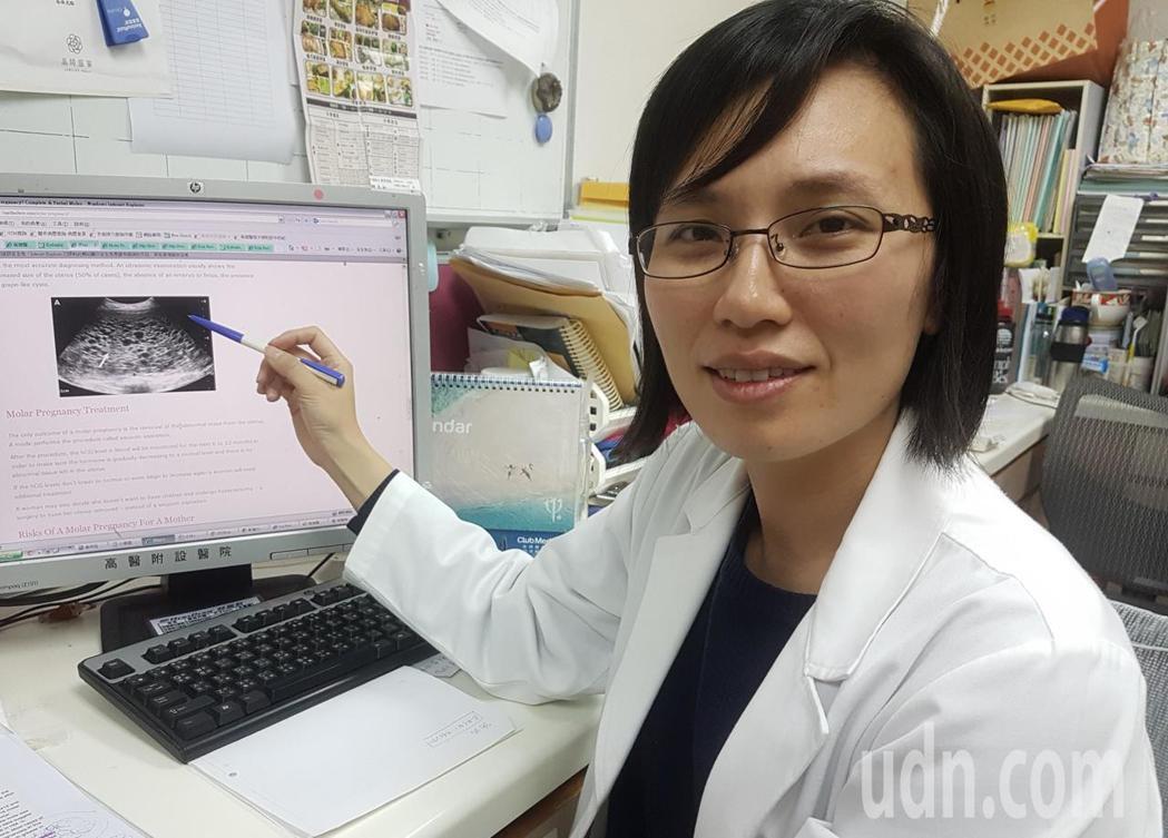 高醫婦產科醫師莊蕙瑜說,高齡孕婦罹葡萄胎機率較高,須提高警覺。記者蔡容喬/攝影