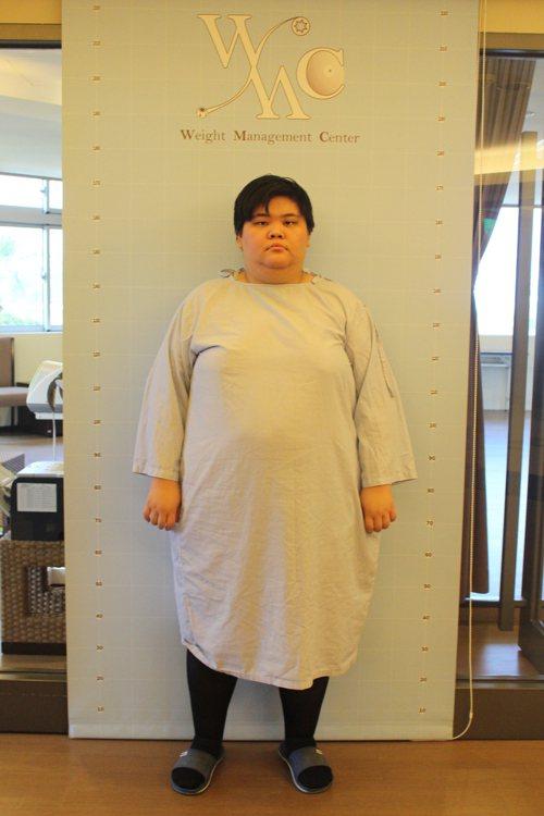 22歲的鍾華瑄曾經133公斤。圖/台北醫學大學附設醫院提供