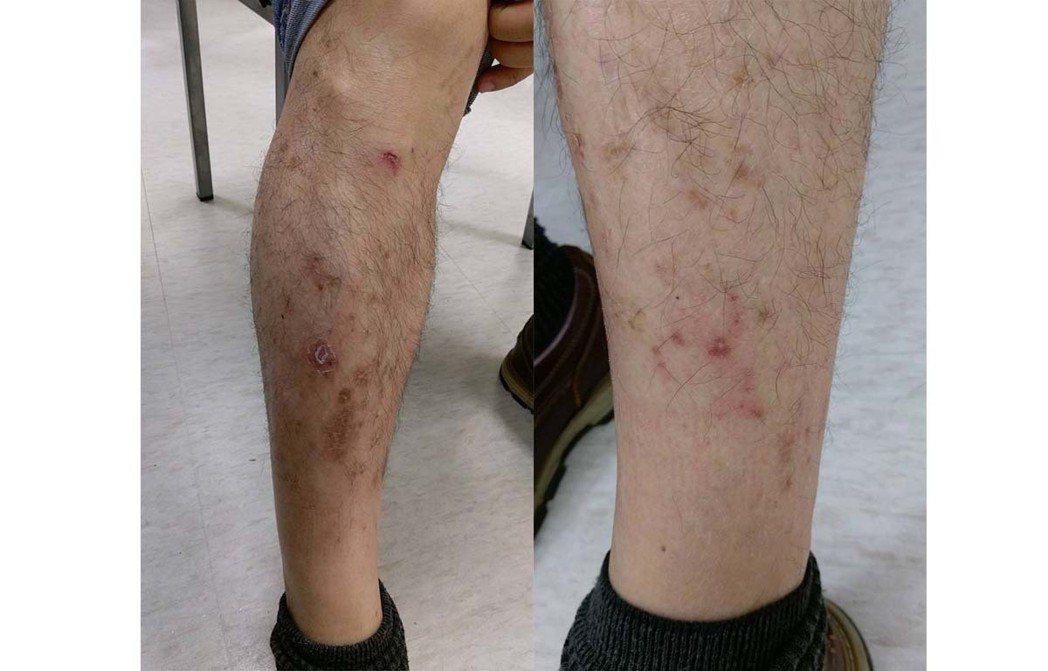 冬季溼疹最常發作於小腿前側,其症狀包括皮膚乾燥脫屑,角質甚至於龜裂有小裂口,也伴...