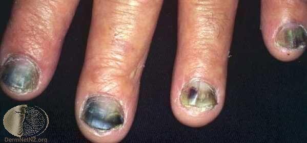 呈現紫黑色與部分黃綠色的灰指甲。Photo Credit:DermaNet Ne...
