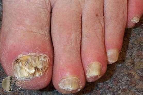 增厚、脫屑、變形的灰指甲。Photo Credit:DermaNet New Z...