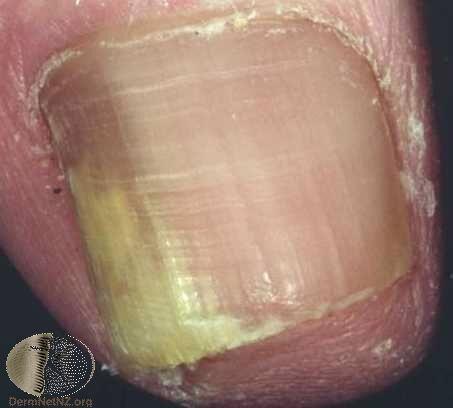 側邊部分感染的灰指甲,可考慮使用外用藥物治療。Photo Credit:Derm...