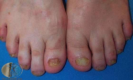 雙腳都感染的灰指甲,合併香港腳(足癬)。 Photo Credit:DermaN...