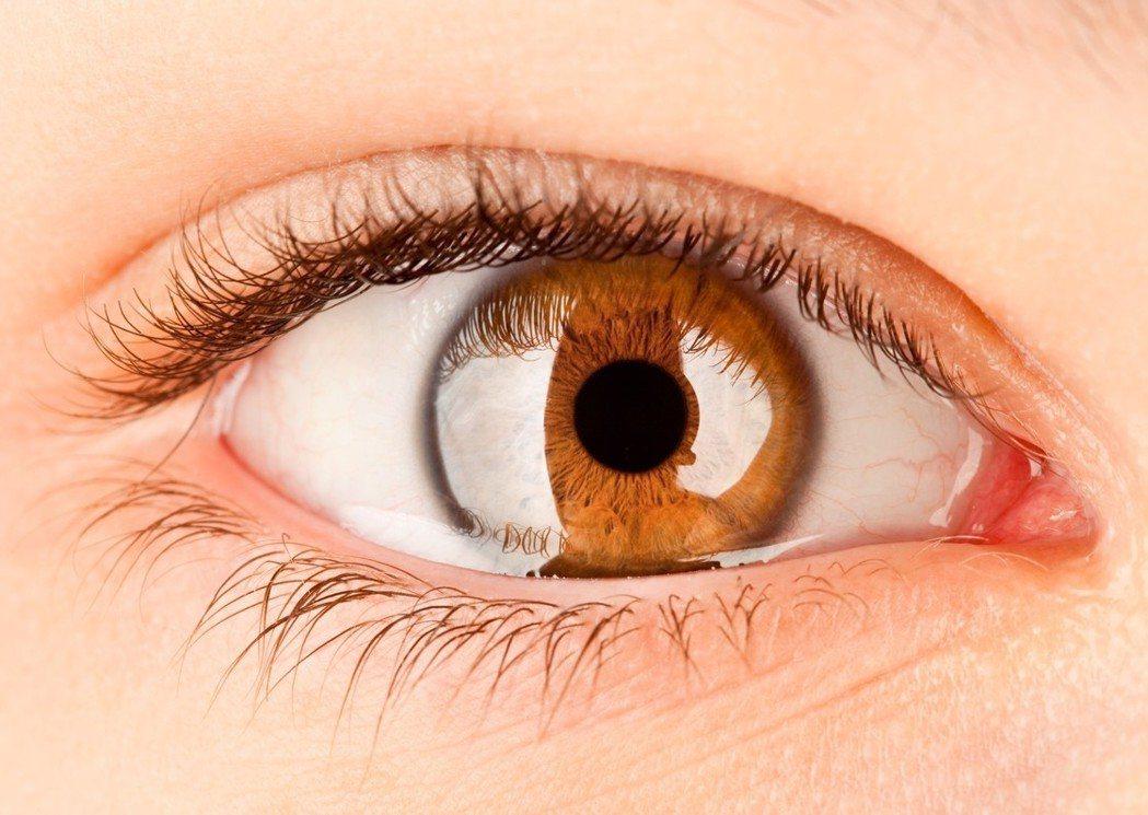 全台灣乾癬患者超過五萬人,林口長庚研究發現,乾癬患者也是眼部葡萄膜炎高風險族群,...