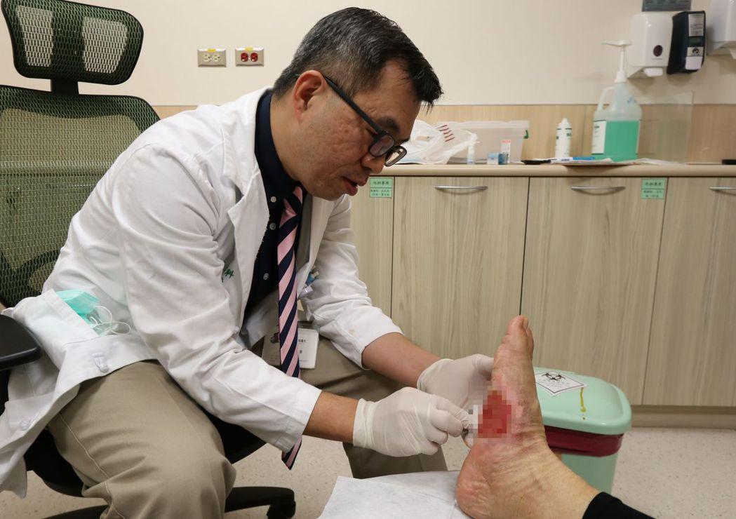 亞大醫院整形外科主治醫師鄭旭棠說明,一名患糖尿病婦人使用泡腳機太久足底燙傷、壞死...