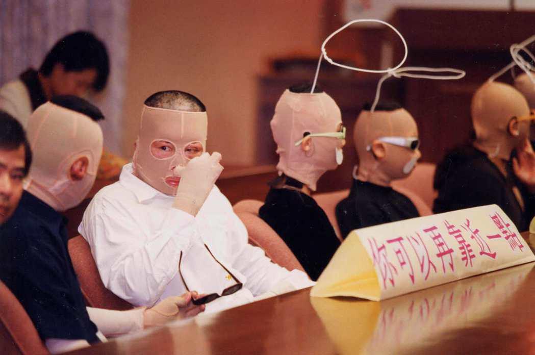 圖為1998年「燒死悲哀、燒無死含眼淚」公聽會在立法院舉行時,許多身體燒傷者到場...