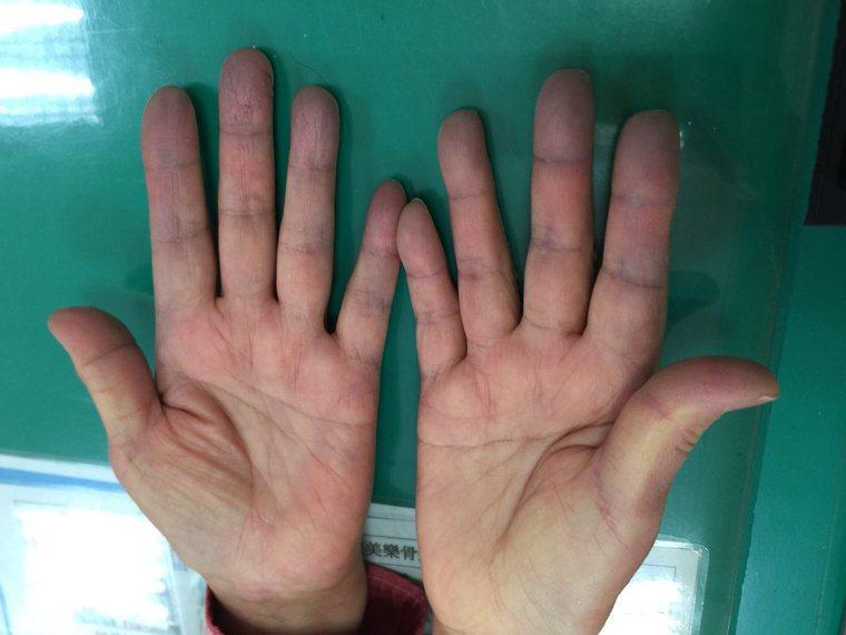 手部末梢發紺是雷諾氏現象的一種表現。圖/長庚醫院提供