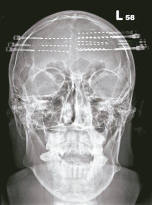 透過立體定向腦電波,在患者腦中置放深部電極。 圖/李政家提供
