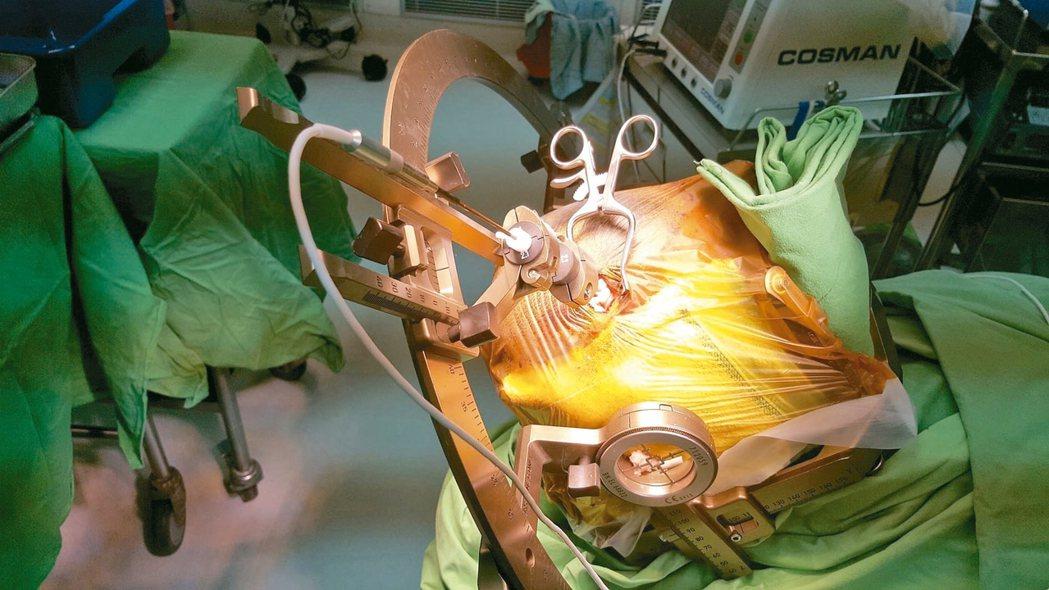 熱凝毀損手術,以小傷口讓熱凝針進入腦部,降低癲癇發作頻率。 圖/李政家提供