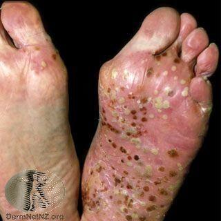 出現在腳部的膿疱性乾癬 ,出現廣泛的發紅、脫屑、大量膿皰。Photo Credi...