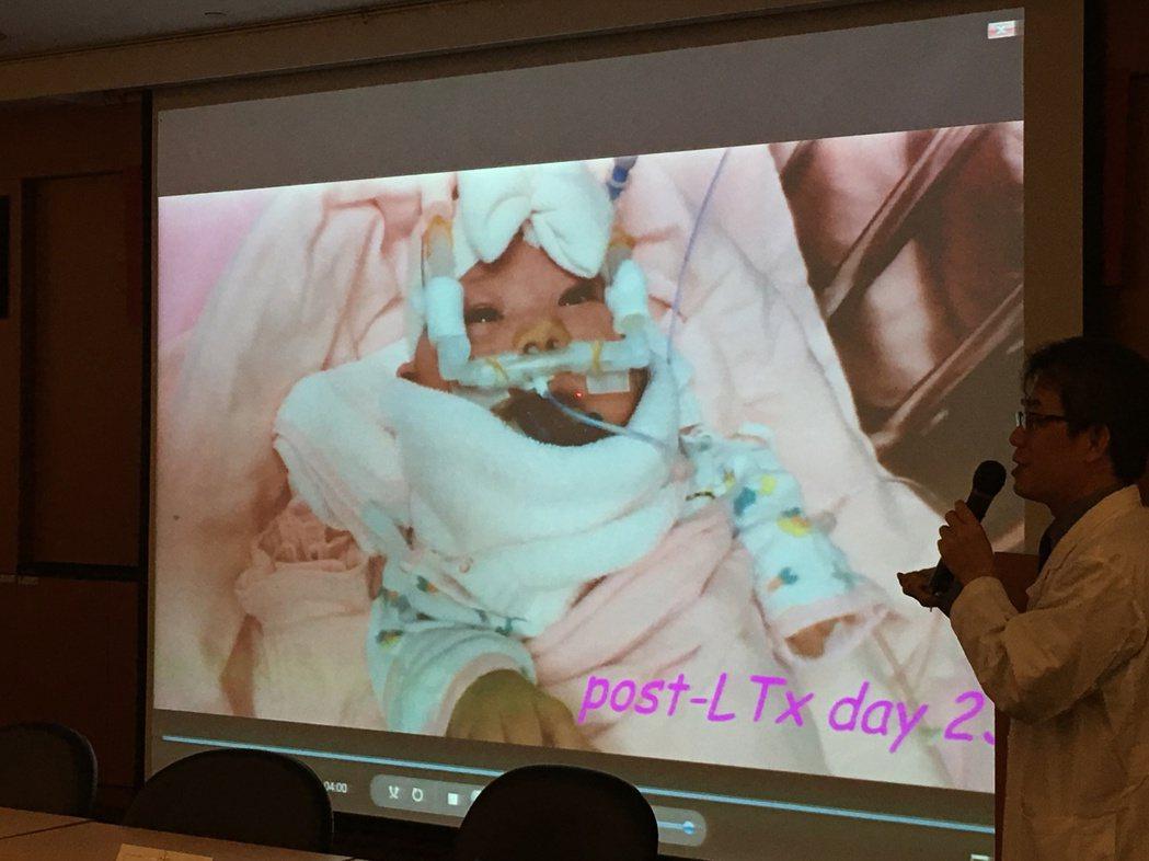 穆小弟一出生即因「新生兒血鐵沉積症」出現猛爆性肝衰竭,命在旦夕。 記者鄧桂芬/攝...
