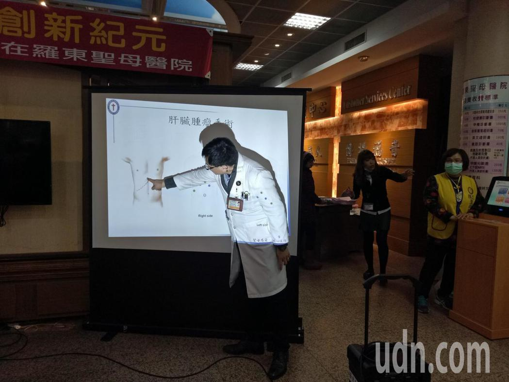 一名橫膈末疝氣患者胃位移至胸腔,羅東聖母醫院外科醫師吳瑞騰以新技術成功治癒,昨天...