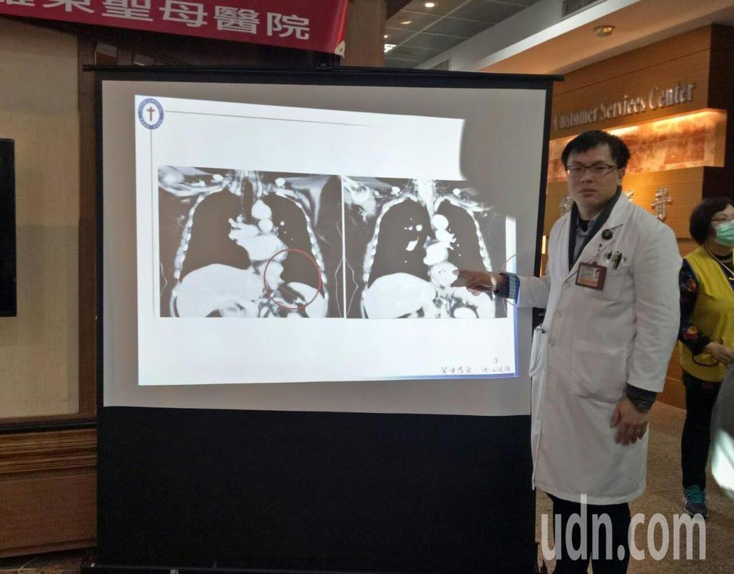 一名橫膈末疝氣患者胃位移至胸腔,羅東聖母醫院外科醫師吳瑞騰以新技術成功治癒。記者...