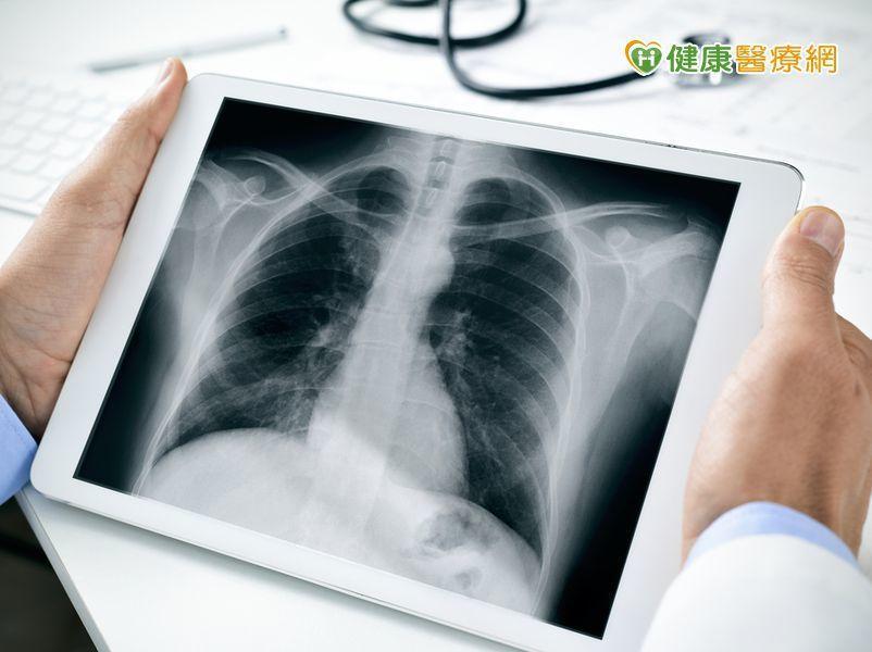 警覺易忽略的腰痛! 恐因肺癌骨轉移