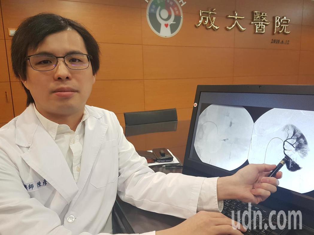 成大醫放射部醫師陳彥睿表示,經導管動脈栓塞協助外傷患者治療多部位出血,效果不錯。...