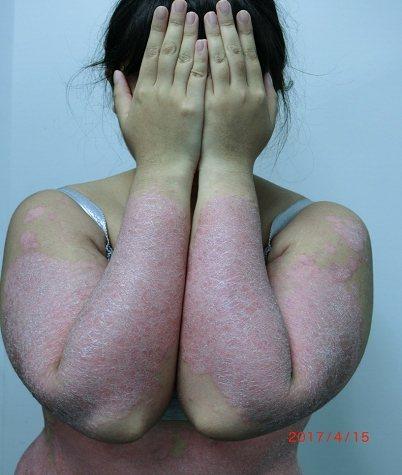 19歲護專實習生乾癬發作出現發紅、脫屑,信心盡失,不敢穿短袖衣服。圖/大林慈濟醫...