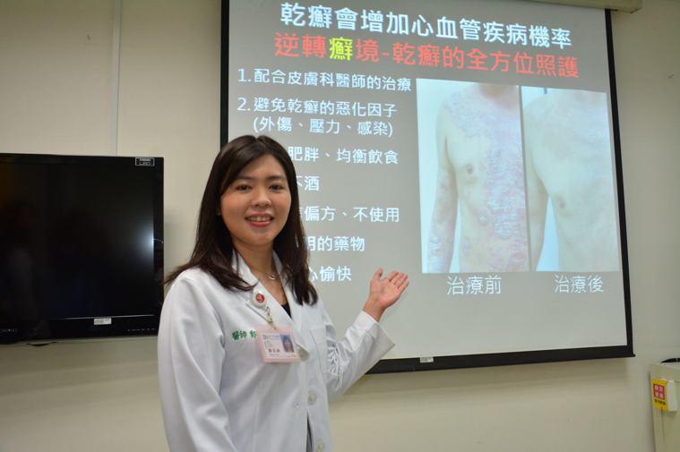 奇美醫學中心皮膚科主治醫師鄭百珊提醒乾癬患者要提早接送治療,以免併發心血管疾病。...