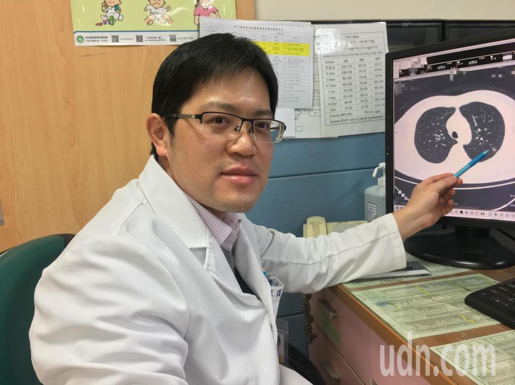 南投醫院胸腔內科醫師王耀麟確診廖男罹患肺癌第一期,及時切除治療,目前控制得宜。圖...