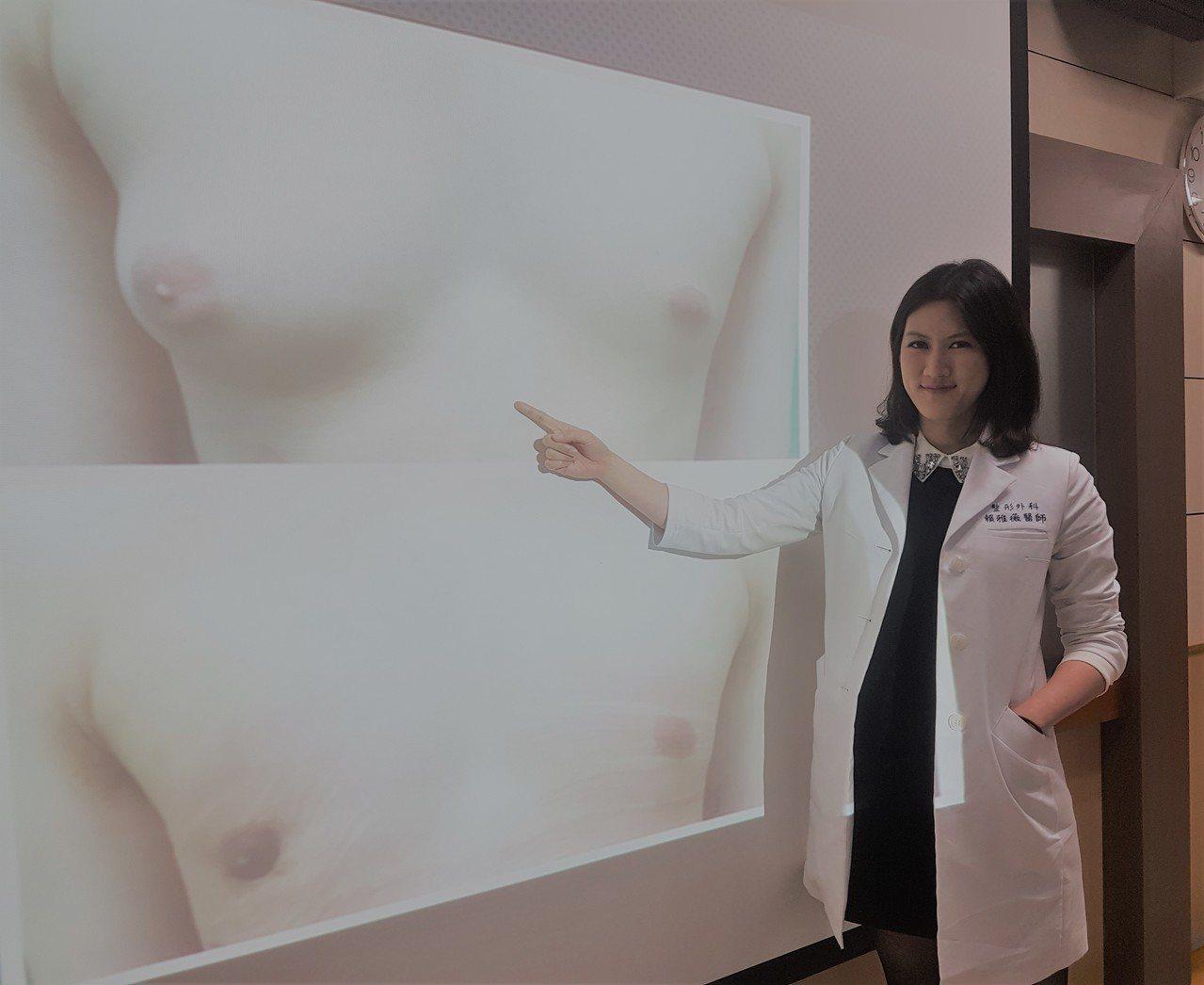 高雄市立大同醫院整形外科主治醫師賴雅薇說,男性女乳症患者每年寒暑假有增多趨勢,她...