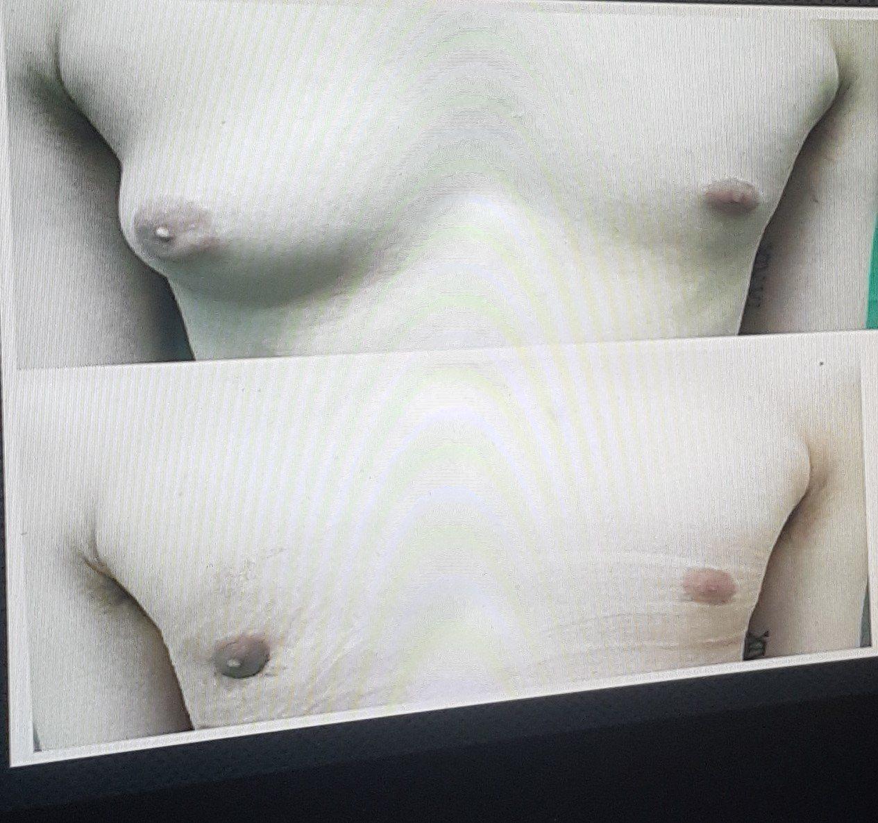 一名25歲男性女乳症患者的右側乳房逼近C罩杯,常被同儕嘲笑,動刀後終於恢復平坦。...