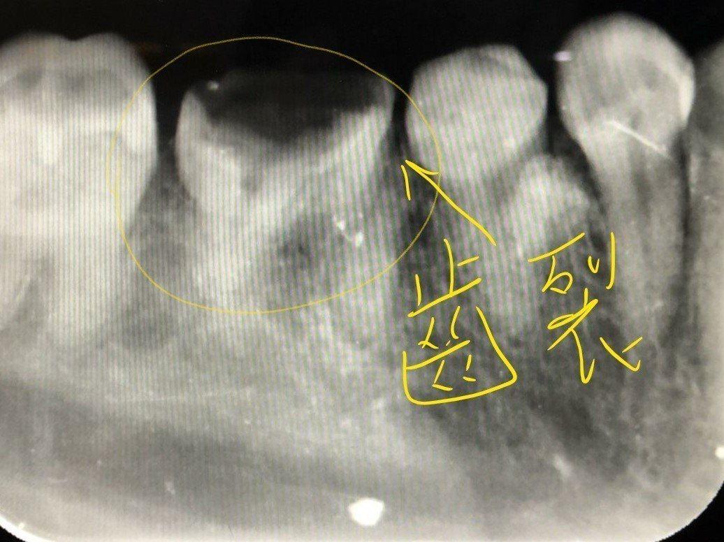 臨床常見牙齒斷裂情形。圖/遠東牙齒提供